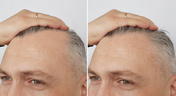 hair restoration results Lahore