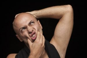 Read more about the article Male Pattern Baldness