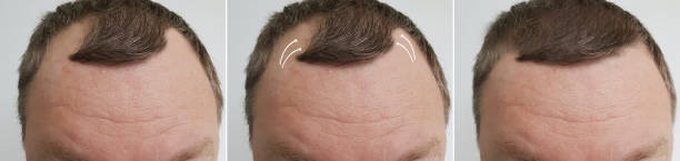 Read more about the article Hair Loss Causes and Treatments