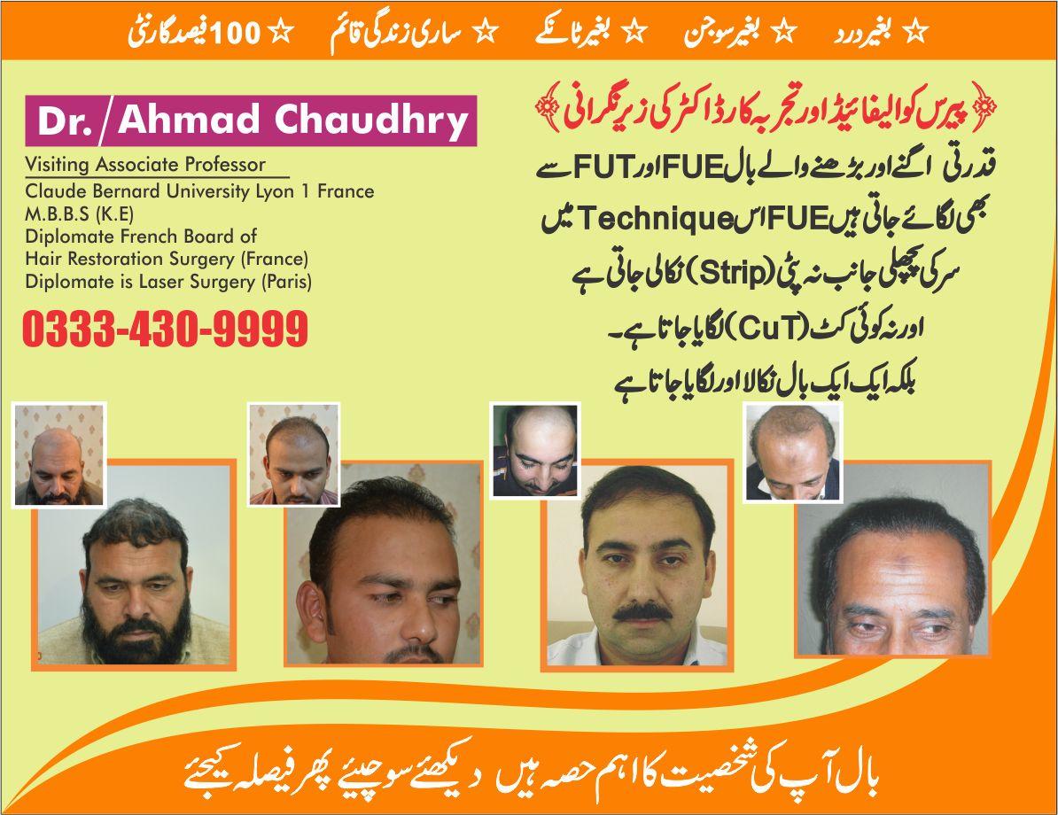 hair transplant result in Lahore