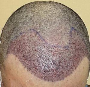 Cheap hair transplant Pakistan