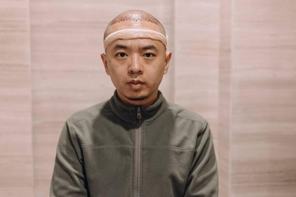 Cheapest hair transplant in world