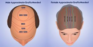 Read more about the article Hair transplant Spain