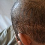 Linear scar of strip procedure