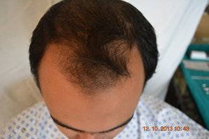 1000 euro hair transplant