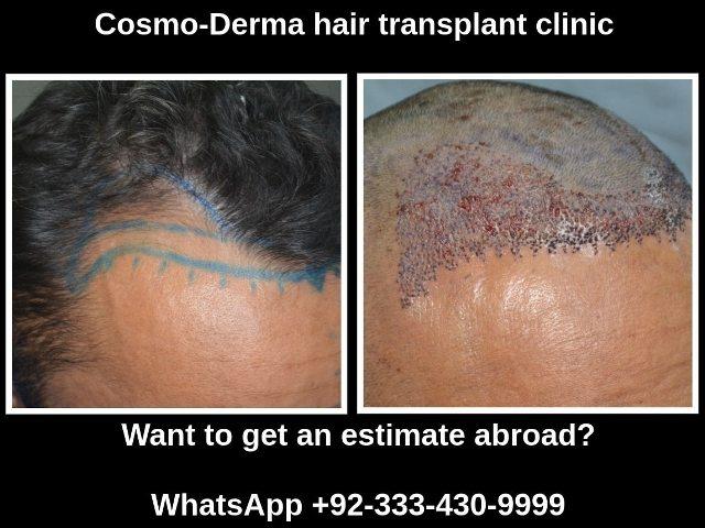 Hair Transplant Cost Australia