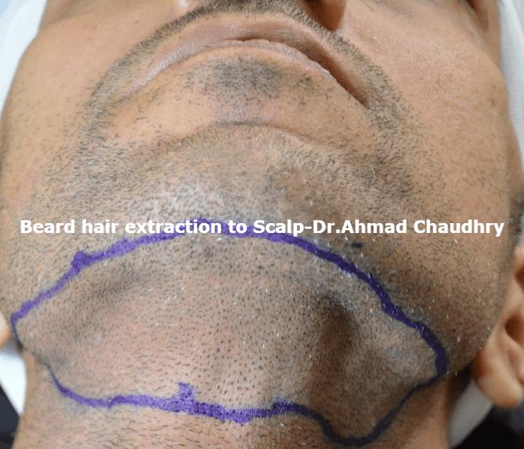 facial beard-hair-transplant-clinic-lahore