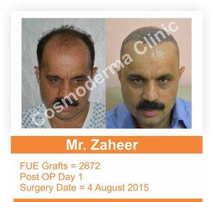 Fue hair transplant in Lahore