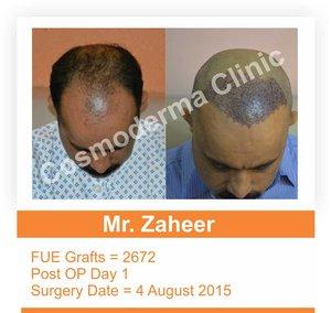 Fue hair transplant success rate