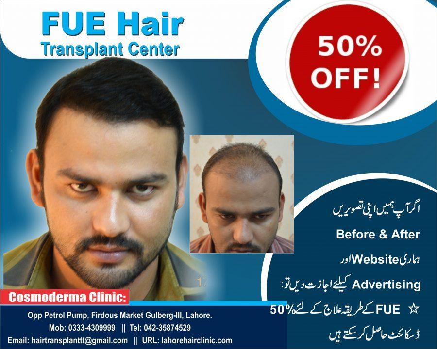 Hair transplant cost Lahore