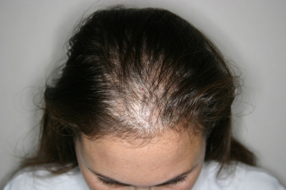 hair loss treatment for women in Lahore