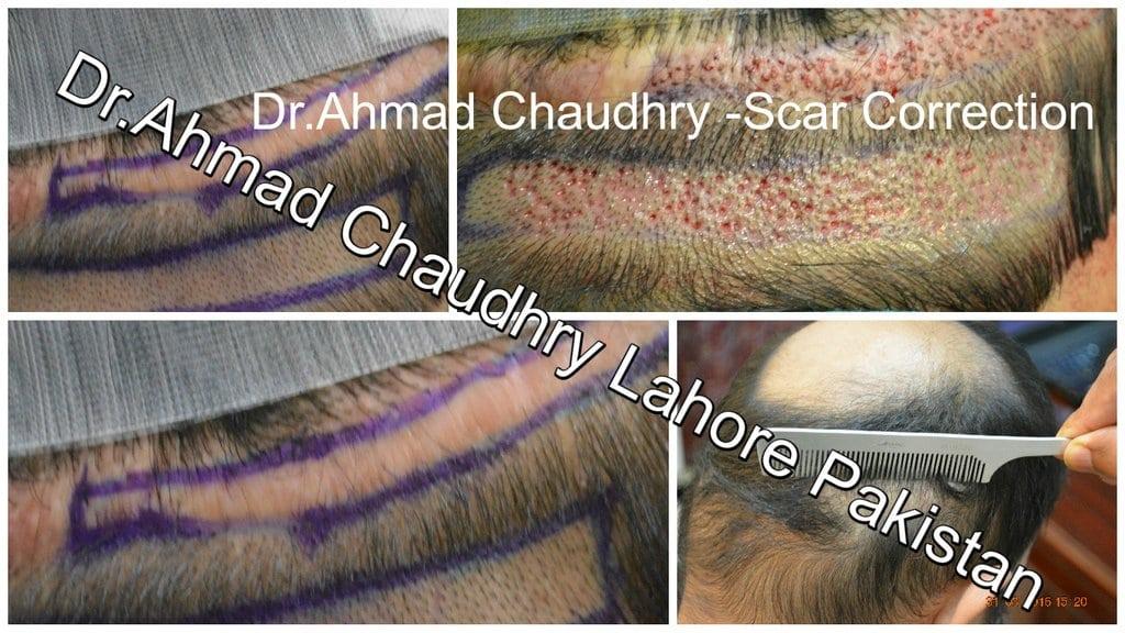 hair-transplant-donor-scar-repair-result-lahore