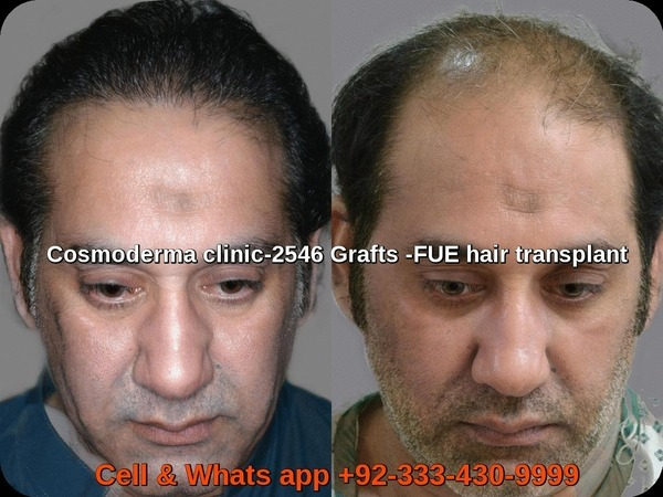 2500-grafts-hair-transplant-before-after-results