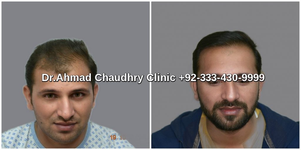 3000-grafts-hair-transplant-cost-in-Pakistan