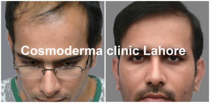 Front-hairline-clinic-lahore-Pakistan