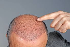 Read more about the article Hair transplant Perth