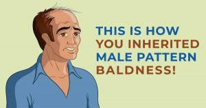 Will I Go Bald if My Dad is