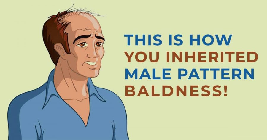 Read more about the article Will I go bald if my dad is