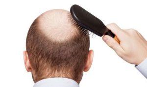 Transplantation hair Germany method fue