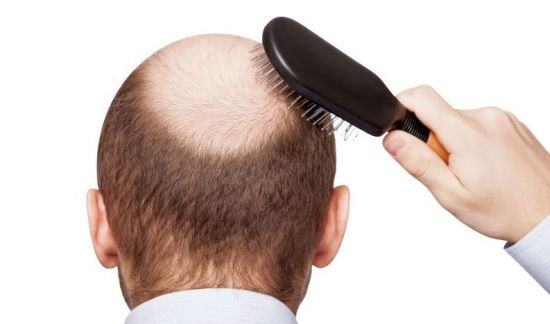 Read more about the article Transplantation hair Germany method fue