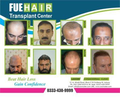 Best hair transplant result