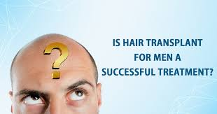 You are currently viewing How successful is a hair transplant
