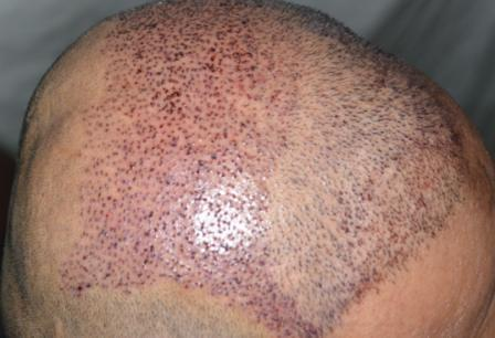 24 hours after hair transplant procedure