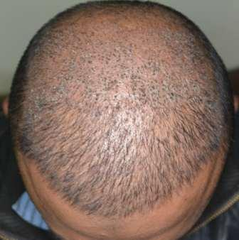 Hair falling 10 days after hair restoration procedure