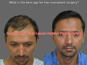 Hair Transplant Candidacy