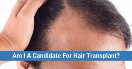 best age for hair transplant