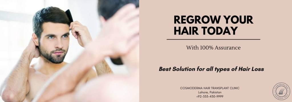 Hair regeneration Lahore