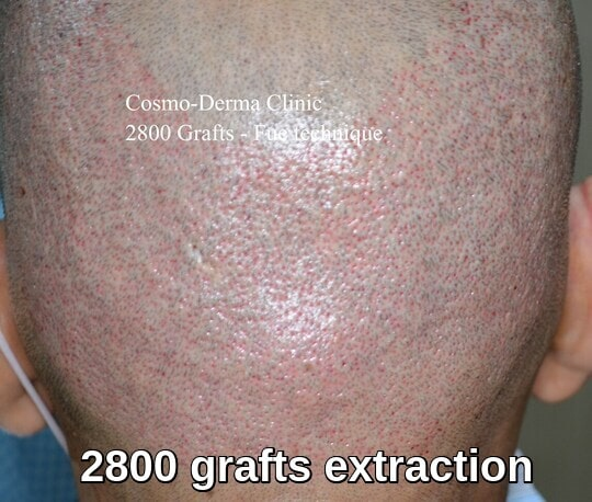 2800 Fue grafts extraction