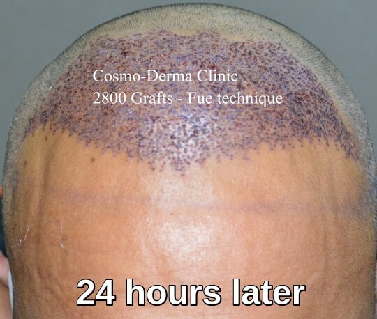2800 grafts frontal area