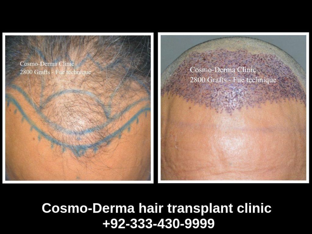 2800 grafts hair transplant