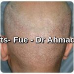 3200 grafts hair transplant