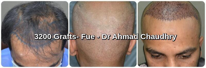 3200 grafts hair transplant