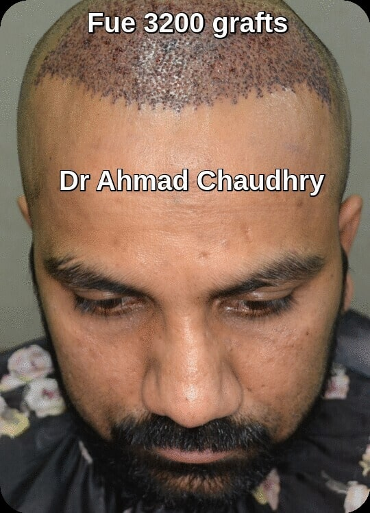3200 grafts hair transplant post op day one
