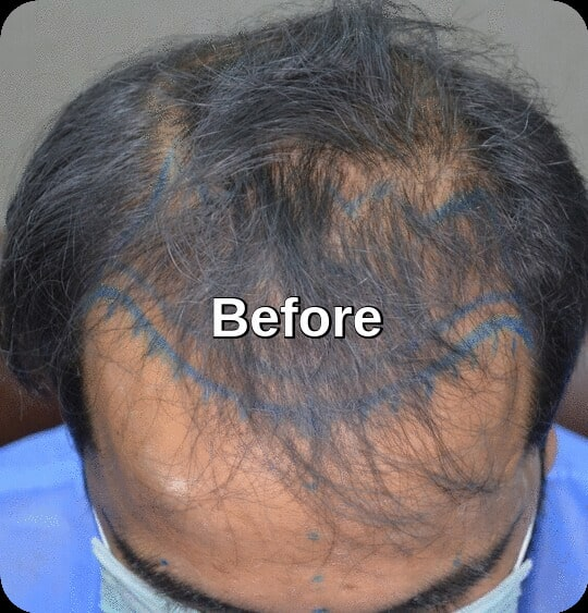 Before procedure Lahore