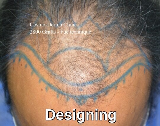 Hair loss treatment frontal area