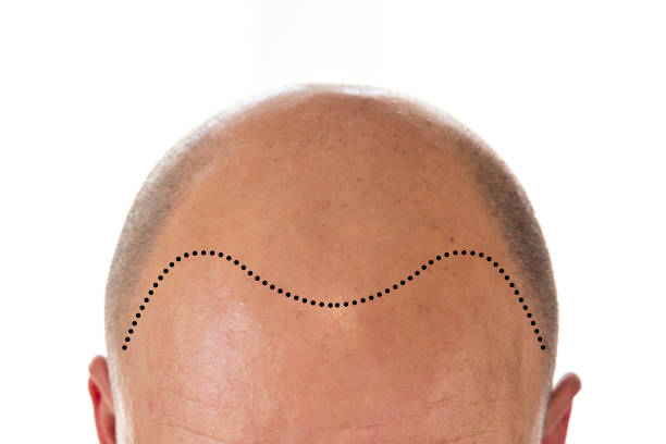 Baldness treatment clinic Lahore Pakistan