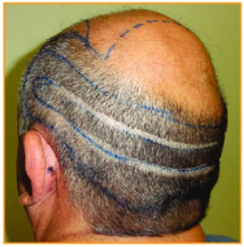 FUT and FUE combined