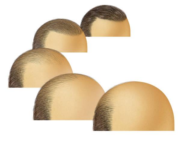 Hair procedure for balding