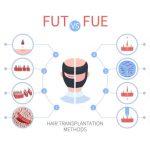 Benefits Fue hair transplant