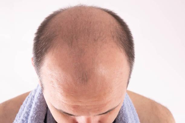 Baldness treatment Dubai