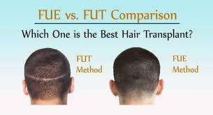 Fue Vs FUT comparison
