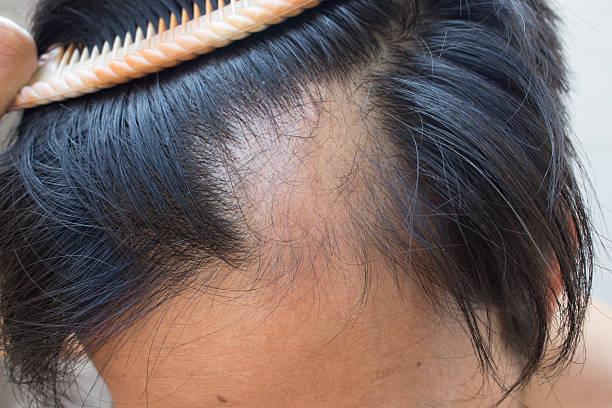 Left corner baldness