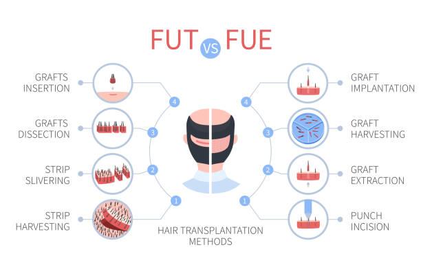 Hair transplant techniques China