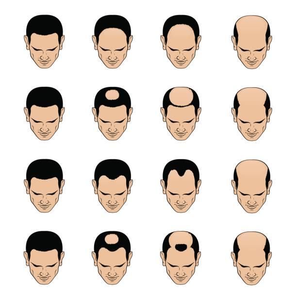 male pattern baldness types